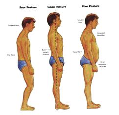Posture Comparison
